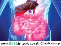 Irritable bowel syndrome (IBS)