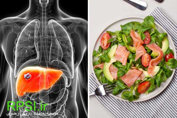 How to Eat Right With Fatty Liver Disease